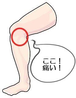 痛い 押す の と 膝 内側